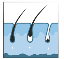 ILP Ontharen - Haarzakjes