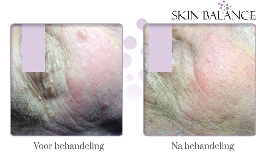 oneffenheden huid verwijderen