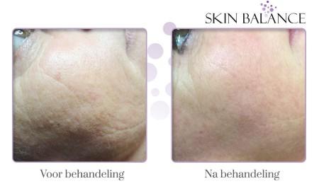 Huidpeeling behandeling voor-na