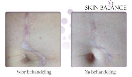Behandeling litteken buik voor en na